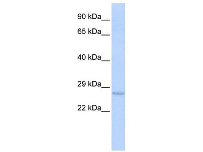 Rabbit Polyclonal Anti-USE1 Antibody