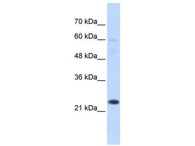 Rabbit Polyclonal Anti-TAF12 Antibody