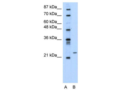 Rabbit Polyclonal Anti-PMF1 Antibody