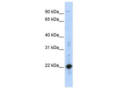 Rabbit Polyclonal Anti-CRIP2 Antibody