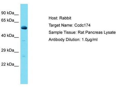 Rabbit Polyclonal Anti-CCDC174 Antibody - middle region