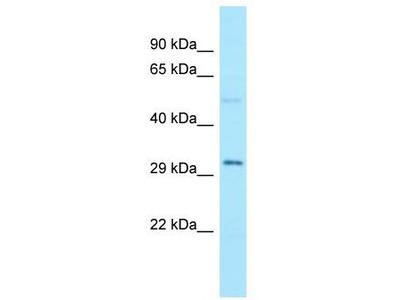 Rabbit Polyclonal Anti-AMMECR1 Antibody