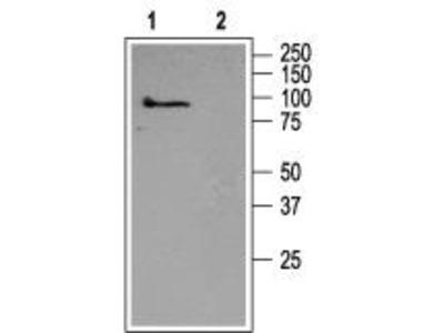 Rabbit Polyclonal Anti-TRPC5