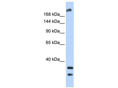 Rabbit Polyclonal Anti-TRPM2 Antibody