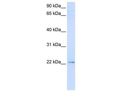 Rabbit Polyclonal Anti-TMEM9 Antibody