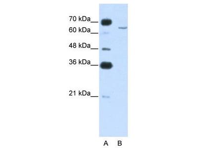 Rabbit Polyclonal Anti-CPEB2 Antibody