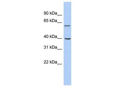 Rabbit Polyclonal Anti-TRIM26 Antibody