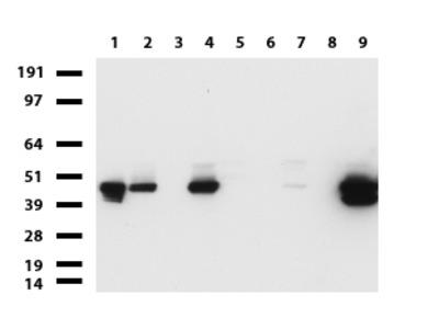 KRT19/CK19 mouse monoclonal antibody,clone UMAB186
