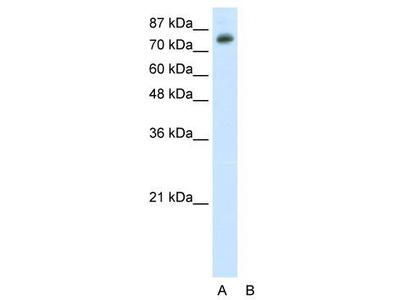 Rabbit Polyclonal Anti-TSC22D2 Antibody