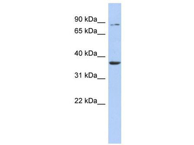 Rabbit Polyclonal Anti-HS3ST1 Antibody