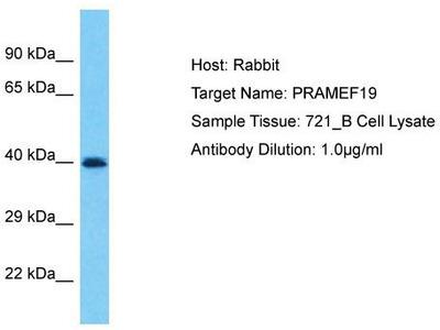 Rabbit Polyclonal Anti-PRAMEF19 Antibody