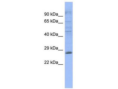 Rabbit Polyclonal Anti-PLEKHB2 Antibody