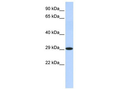 Rabbit Polyclonal Anti-HSD17B14 Antibody - middle region