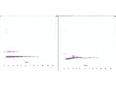 Anti-Human CTGF Rabbit Polyclonal Antibody