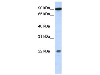Rabbit Polyclonal Anti-TMTC4 Antibody