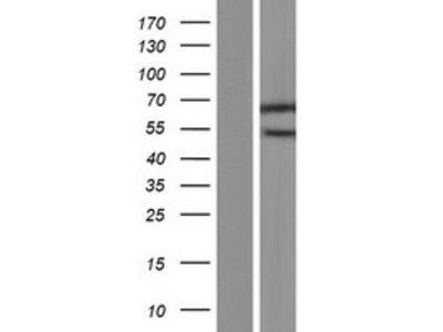 SMARCD2 (NM_001098426) Human Over-expression Lysate