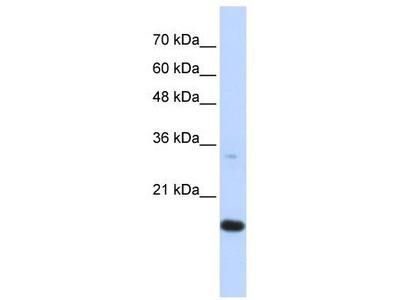 Rabbit Polyclonal Anti-GABARAPL1 Antibody
