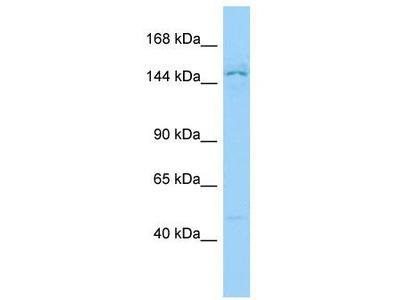 Rabbit Polyclonal Anti-PPP1R9A Antibody