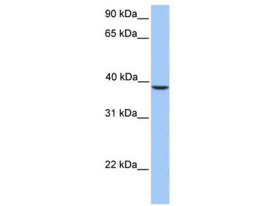 Rabbit Polyclonal Anti-SUN3 Antibody