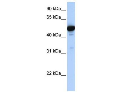 Rabbit Polyclonal Anti-GLUD1 Antibody