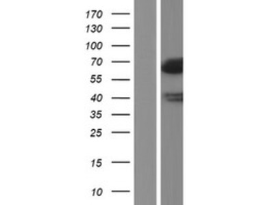 Lipolysis Stimulated Lipoprotein Receptor (LSR) (NM_205835) Human Over-expression Lysate