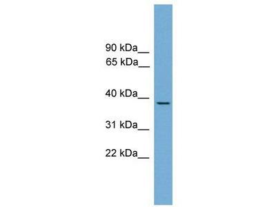 Rabbit polyclonal anti-B230358A15Rik antibody