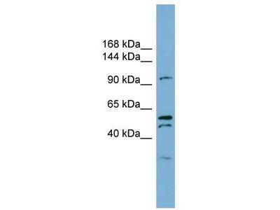 Rabbit Polyclonal Anti-ANO6 Antibody