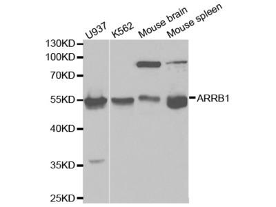 Rabbit anti-ARRB1 Polyclonal Antibody