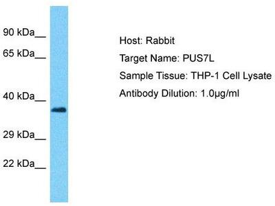 Rabbit Polyclonal Anti-PUS7L Antibody