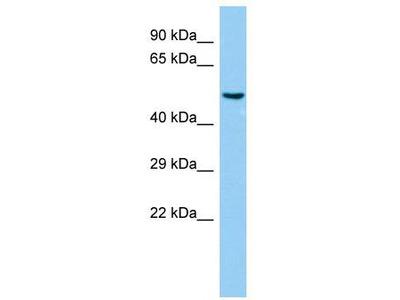 Rabbit Polyclonal Anti-BPIFB6 Antibody