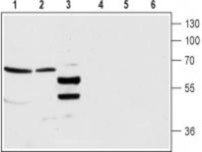 Rabbit Polyclonal Anti-GABA(A) alpha4 (extracellular)