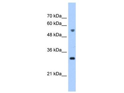 Rabbit polyclonal anti-TTC5 antibody