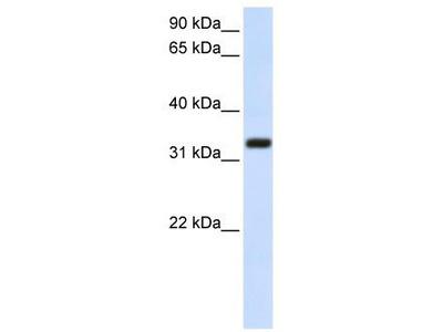 Rabbit Polyclonal Anti-TMEM66 Antibody