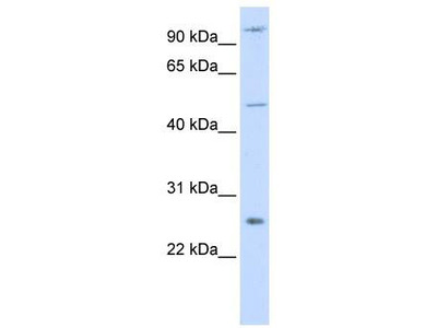 Rabbit Polyclonal Anti-TRAF4 Antibody