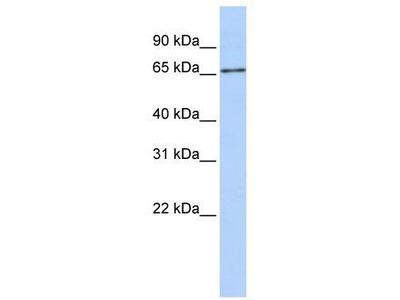 Rabbit Polyclonal Anti-SLC27A6 Antibody