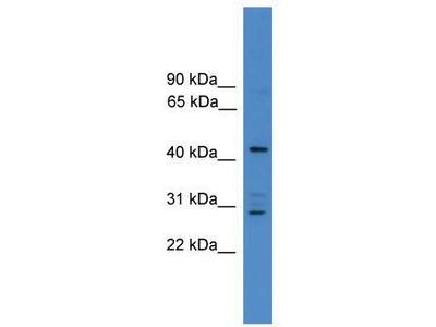 Rabbit polyclonal Anti-ARMC8 Antibody