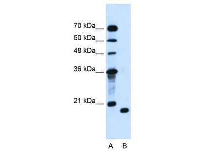 Rabbit Polyclonal Anti-PTRH2 Antibody
