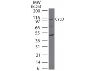 Rabbit Polyclonal CYLD Antibody