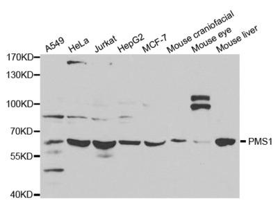 PMS1 Rabbit Polyclonal Antibody