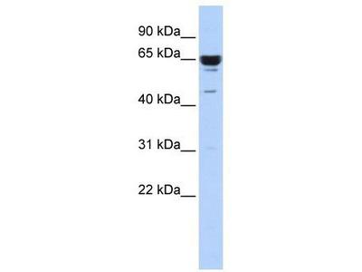 Rabbit Polyclonal Anti-ZNF587 Antibody