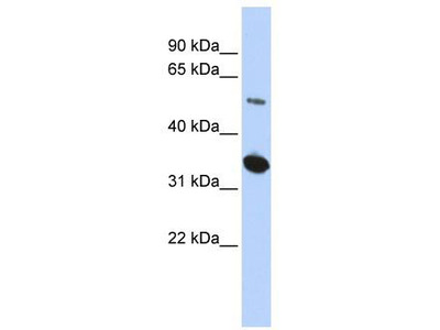 Rabbit Polyclonal Anti-FAM175B Antibody