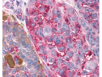 Rabbit Polyclonal Anti-TAS1R3 Antibody (N-Terminus)
