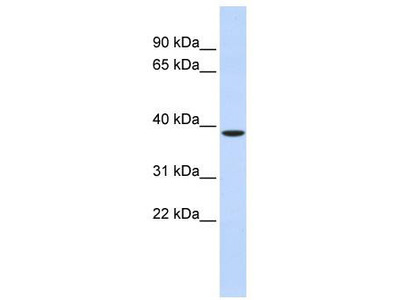 Rabbit Polyclonal Anti-ZFPL1 Antibody - middle region