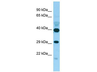 Rabbit Polyclonal Anti-PISD Antibody