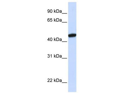 Rabbit Polyclonal Anti-KRR1 Antibody