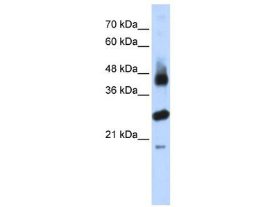 Rabbit Polyclonal Anti-FBXL2 Antibody