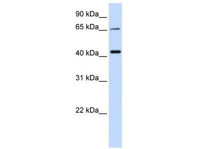 Rabbit Polyclonal Anti-QPCTL Antibody
