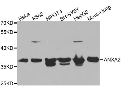 ANXA2 Rabbit Polyclonal Antibody