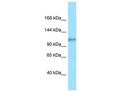 Rabbit Polyclonal Anti-FCRL5 Antibody
