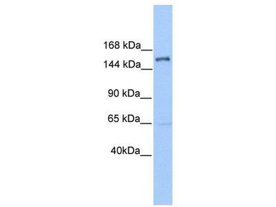 Rabbit Polyclonal Anti-PLEKHH2 Antibody